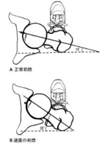 前捻角 のコピー 2