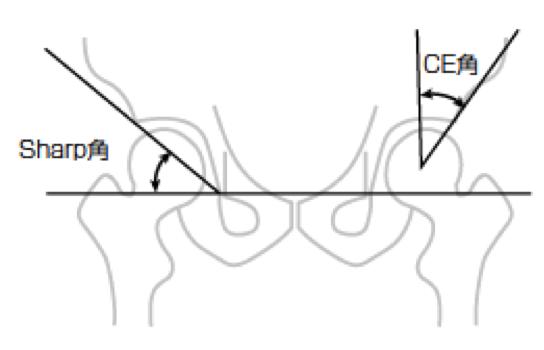 CE角やSharp角の測定方法や正常値をご紹介!臼蓋形成不全と関係?!