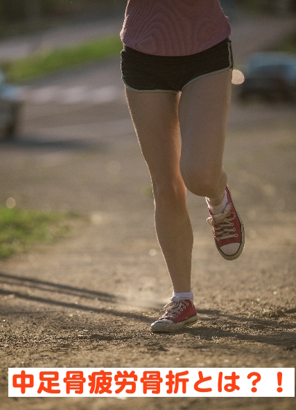 足の甲が痛み腫れていたら中足骨疲労骨折かも?!  原因や病態をご紹介!