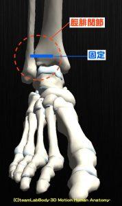 脛腓関節 固定-min
