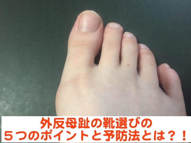 外反母趾にならない靴を選ぶ5つのポイントとは?! 簡単にできる予防方法をご紹介!