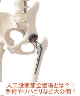 人工股関節全置換術の術後のリハビリや脱臼リスクとは?!スポーツ復帰や変形性股関節症についても解説!